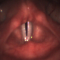 Endoscopic image of the larynx and the vocal folds