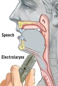 elarynx.jpg